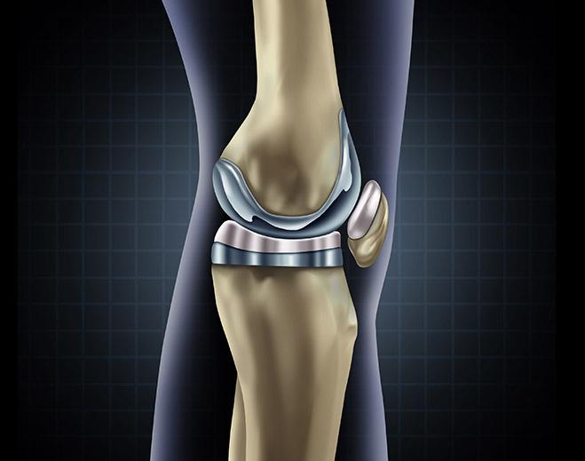 Orthopedics-Knee-Replacement